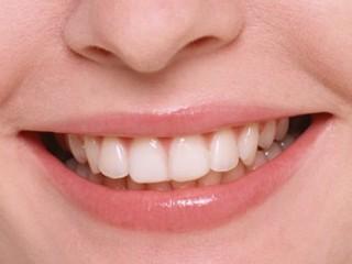 Denti : cura e benessere