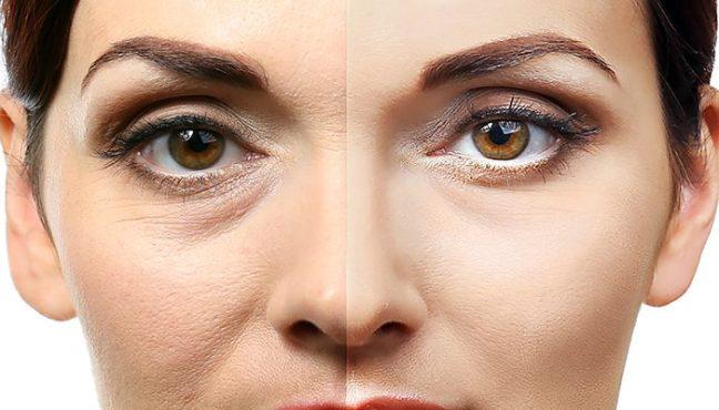 Rimuove le occhiaie con rimedi naturali
