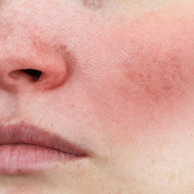 Vene capillari sul viso