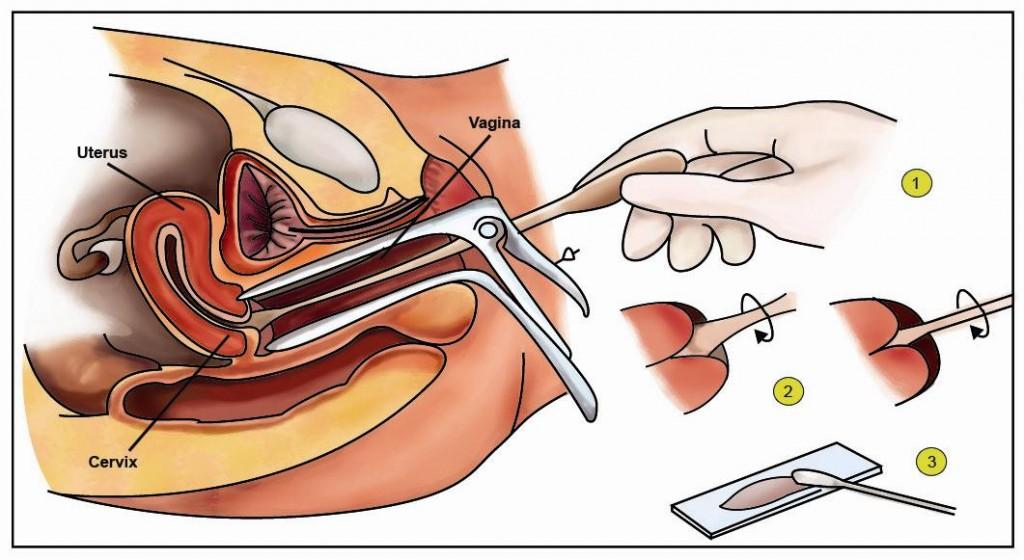 Pap Test: prevenzione al tumore all'utero