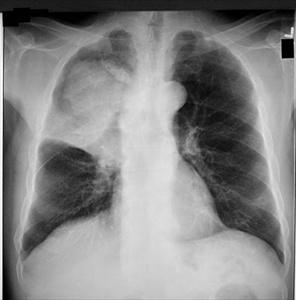 Tumore ai polmoni: aperta la speranza su metastasi
