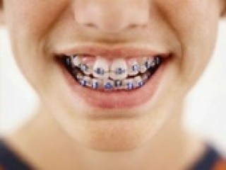 spese odontoiatriche
