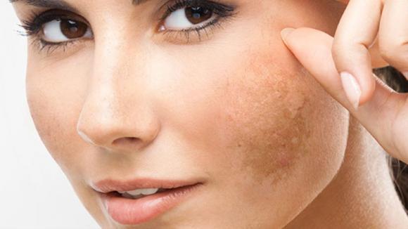 Tè verde per rimuovere le macchie della pelle