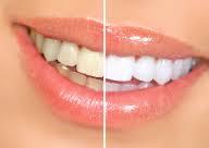 Denti più bianchi: come ottenerli